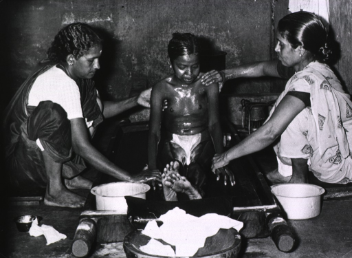 <p>A young girl sitting in a low tub is receiving an oil bath.</p>