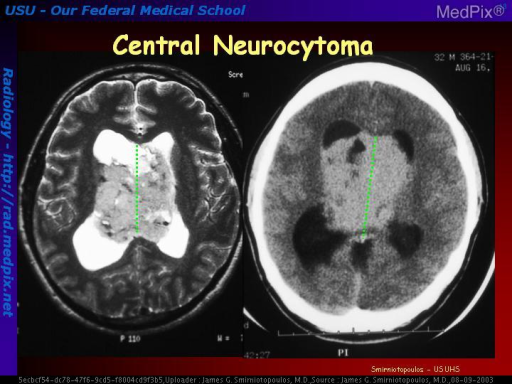 Central Neurocytoma (CNC) is a tumor of mature neuronal cells.  They are most commonly attached to the septum pellucidum or in the third ventricle.  They were mistakenly called 'intraventricular oligodendroglioma' until special stains and EM revealed suggested their origin from neuronal cells.  They may be complicated by spontaneous hemorrhage. They are hyperdense without contrast on CT, and may contain both small cysts and calcifications.