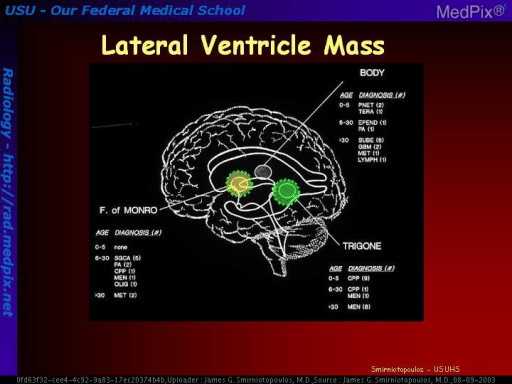 Drawing of lateral ventricular masses and differential diagnosis.