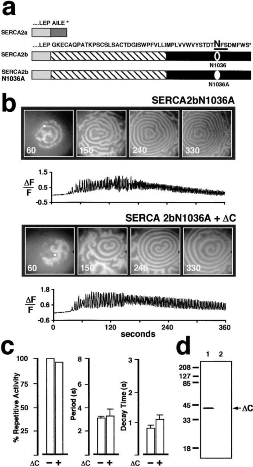 Site-directed mutagenesis of SERCA2b residue N1036  creates a protein that is no longer responsive to ΔC coexpression,  and that resembles SERCA2a. (a) Amino acid sequence comparison between the COOH terminus of SERCA2a and SERCA2b.  The eleventh transmembrane segment of SERCA2b is shown  (hatched). The consensus N-linked glycosylation motif is underlined, and the mutated residue N1036A is indicated in bold. (b)  Comparison of Ca2+ wave activity in two oocytes overexpressing  SERCA2bN1036A (top) or SERCA2bN1036A + ΔC (bottom).  (c) The left histogram shows percent of oocytes exhibiting repetitive Ca2+ oscillations when SERCA2bN1036A is expressed alone  or with ΔC. Of those oocytes that displayed repetitive Ca2+ oscillations, no significant differences were found in either interwave  period (middle histogram) or in decay time (right histogram) between oocytes coexpressing ΔC with SERCA2bN1036A and control oocytes overexpressing SERCA2bN1036A alone. These results are similar to those observed for SERCA2a and SERCA2a  + ΔC-overexpressing oocytes (see Fig. 4 b). (d) Western blot  analysis demonstrates overexpression of ΔC in fractions from  SERCA2bN1036A + ΔC oocytes (lane 1). No detectable CRT  product was observed in extracts from control oocytes (H2O replacing mRNA) (lane 2). The membrane was probed with the  anti-CRT KDEL primary Ab from Fig. 4 c.