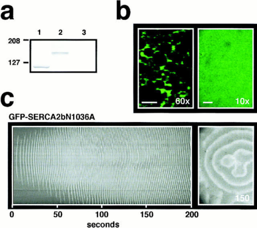 Residue N1036 is critical in determining the functional  differences between SERCA2 isoforms. (a) Differential migration patterns between SERCA2bN1036A (lane 1) vs. GFP-SERCA2bN1036A (lane 2) on a Western blot probed with the  same N1 anti-SERCA2 Ab from Fig. 2 b. Fractions from control  oocytes (H2O replacing mRNA) were run on lane 3. (b) Confocal  images of GFP fluorescence intensity at high resolution (60× objective; 52 μm × 36 μm) and at low resolution (10× objective;  745 μm × 530 μm) in a GFP-SERCA2bN1036A oocyte matched  for GFP fluorescence intensity with the oocytes shown in Fig. 3 a.  (c) Spatiotemporal stack (left) of Ca2+ wave activity from the  GFP-SERCA2bN1036A overexpressing oocyte in b. Confocal  image of Ca2+ wave activity at the indicated time (right). Imaging  parameters were similar to those described in Fig. 3 b.