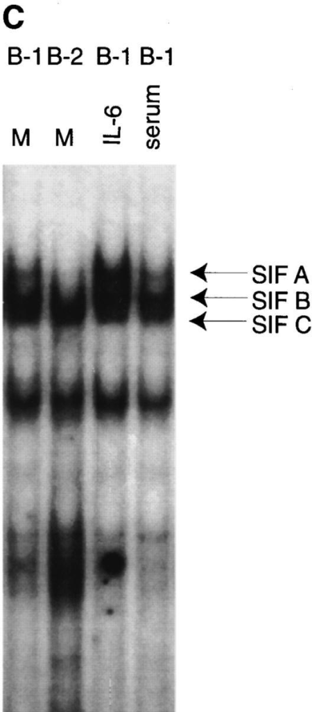 Constitutive expression of specific nuclear SIE-binding activity that co- migrates with IL-6–induced SIF A in B-1  cells. (A) EMSA analysis of nuclear extracts prepared from B-2 cells (15 × 106) incubated in  medium alone or treated with IL-6 (1,000 U/ ml for 15 min; Genzyme, Cambridge, MA) or  IFN-γ (γ; 5 ng/ml for 15 min; Genzyme), or  B-1 cells (7.5 × 106) incubated in medium  alone. Nuclear extracts were incubated with  radiolabeled oligonucleotide containing the  high-affinity c-fos SIE sequence (28). Arrows  indicate the positions of STAT3 homodimers  (SIF A), STAT3–STAT1 heterodimers (SIF  B), and STAT1 homodimers (SIF C). (B)  Specific binding activity of the constitutive B-1  SIE-binding complex. Competition analysis  was performed on nuclear extracts from untreated B-1 cells in an EMSA using 20-fold  excess unlabeled SIE or NF-AT (control) oligonucleotides. Arrows indicate the positions  of SIE-binding complexes containing SIF A,  B, and C. (C) Serum does not induce SIF A  in B-1 cells. SIE–EMSA analysis of nuclear  extracts prepared from B-1 cells purified and  cultured in the presence of serum-free medium alone (lane 1), or in serum-free medium  plus IL-6 (1,000 U/ml for 15 min; lane 3), or  subsequent resuspension in serum-containing  RPMI medium for 15 min (lane 4). B-2 cells  (lane 2) were cultured in serum-containing  RPMI medium alone.