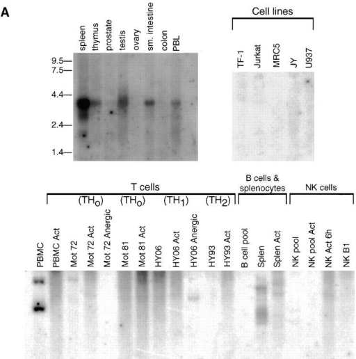Analysis of BN-1 gene expression. (A) Northern blot analysis  of BN-1 expression in RNA prepared from the various human tissues and  cell lines (top); sizes of RNA markers (in kilobases) are indicated in the left  margin. (Bottom) A Southern blot analysis of BN-1 in cDNA libraries prepared from the human PBL and primary cell T, B, and NK cell cultures.  PBMC, human peripheral blood mononuclear cells; PBMC Act, the same  PBMC stimulated with anti-CD3 and PMA for 2, 6, and 12 h and  pooled; Mot 72 and Mot 81, human Th0 T cell clones. Act, Stimulation  with anti-CD3 and anti-CD28 for 2, 6, and 12 h and pooled; and Anergic,  stimulation with a specific peptide rendering the cells nonresponsive to  antigen stimulation. HY06 and HY93 are human Th1 and Th2 T cell  clones, respectively, with activation and anergy treatments as above except for the peptide specificity; B cell pool, a collection of EBV cell lines;  Splen, total human splenocytes, resting; Splen Act, the same population  stimulated with anti-CD40 and IL-4 for 2, 6, and 16 h and pooled; NK  pool, a pool of primary NK cell clones; NK Act 6h, the same pool stimulated 6 h with PMA and ionomycin; NK B1, a single primary human NK  cell clone; NK Act 6h, that clone activated as above. Probing replicate  blots with human β actin cDNA gave readily detectable ∼2.0-kb species  in all lanes (data not shown). References upon request. (B) Southern blot  of BN-1 distribution (top) in cDNA libraries made from monocytes and  DCs. U937, human monocyte cell line. Human elutriated monocytes  have been stimulated as follows: LPS/IFNγ, cultured in the presence of  these activators and blocking antibodies for IL-10 for 1, 2, 6, 12, and 24 h  and pooled; LPS/IFNγ/IL10, the same pool without blocking antibodies  to IL-10; LPS 1 h and LPS 6 h, monocytes stimulated for 1 and 6 h with  LPS, respectively; CD34-derived DC, 30 and 70% DCs are CD1a+ DCs  derived from CD34+ human cord blood stem cells by growth in GM-CSF  and TNF-α, with the percent CD1a+ cells determined by FACs® over  time in culture. The cultures were 70% CD1a+ after 12 d. 70% CD1a+  act 1 h and act 6 h, the same cultured DC stimulated with PMA and ionomycin for 1 and 6 h, respectively. Mono-derived DC, DCs derived from  human elutriated monocytes by growth in GM-CSF and IL-4 for 5 and  10 d as listed; GM/IL4/LPS act, 10-d cultures stimulated for 6 h with  LPS; GM/IL4/IL1+TNF, are 10-d monocyte-derived DCs stimulated  with IL-1α and TNF-α for 4 and 16 h and pooled. CD34-derived DC,  sorted, DCs derived from CD34 cells as described that were then sorted on  the basis on the cell surface expression of the markers listed: 95% CD1a+,  DC derived from CD1a-sorted cells (Langerhans-like); CD1a+/CD14+, DC derived from CD14-sorted cells (dermal/interstitial). (Bottom) The same  blot stripped and reprobed with the human CCF-18/MIP-1γ-chemokine. In all cases, the ladder effect represents different sizes of cDNA inserts in the  library ranging from ∼0.6 to 3.5 kbp for BN-1. The two predominant CCF-18/MIP-1γ cDNAS are ∼0.7 and 1.3 kbp. (C) PCR analysis of unamplified mRNA from DC to confirm BN-1 distribution. Lane 1, CD34+ cord blood cells cultured 12 d in GM-CSF and TNF-α; lane 2, CD34-derived  DCs stimulated with PMA and ionomycin; lane 3, CD34-derived DC purified by FACS® sorting for 98% CD1a+ expression; lanes 4–8, various cultures  of monocyte-derived DCs (cultured in GM-CSF + IL-4 for 8 d) under conditions of stimulation as shown; + Ctl, positive control amplification using 1  pg BN-1 plasmid as starting substrate; − Ctl, same reaction with identical reagents in the absence of the plasmid substrate. Elutriated monocytes (not  shown) were also negative. Each lane is representative of at least three independent experiments.