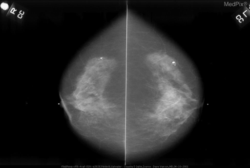 Note the popcorn coarse calcifications in the outer half of both breasts. A mass is clearly associated with the calcifications in the left CC image.
