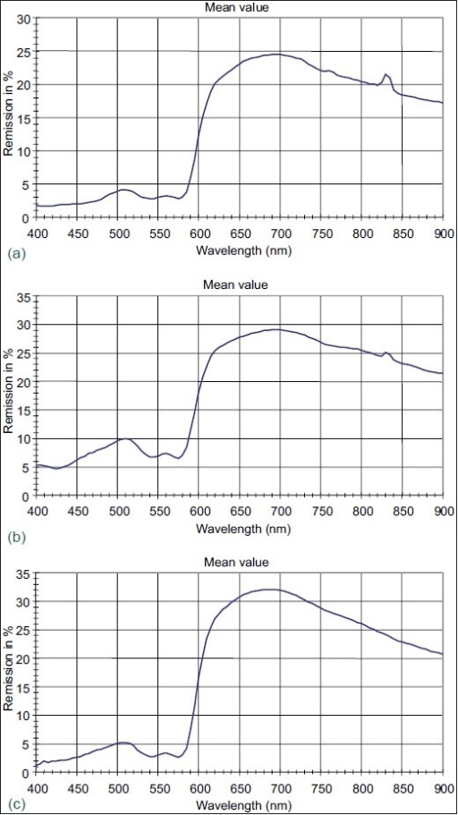Remission spectroscopy of leg ulcers before and after low-frequency US treatment (34 kHz). Measurements before (a), immediately after ultrasound treatment (b), and 30 min later (c). The haemoglobin double-peak between 500 and 600 nm is rather flat before treatment. It becomes more pronounced immediately after treatment what suggests improved microcirculation