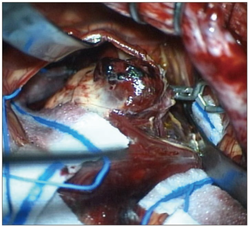 Intraoperative photograph shows that aneurysmal neck clipping with hematoma evacuation are performed. There are no findings suggested of the infectious origin.