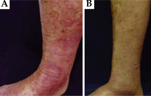 A. Multiple bilateral erythematous round patches on the limbs;B. Dramatic improvement of the lesions after treatment