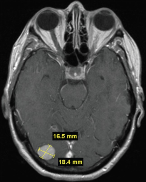 Gadlinium-enhanced T1 weighted MRI. Axial image showing enhancing mass lesion in right occipital lobe