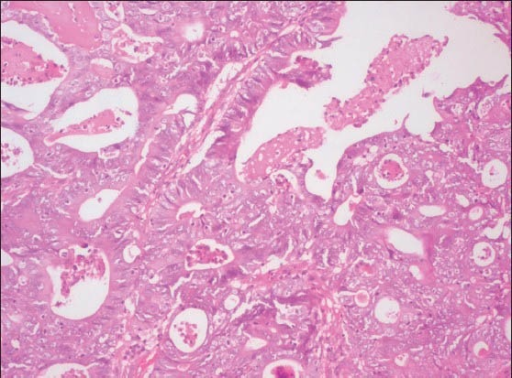 Photomicrograh of gastric biopsy showing tumor cells arranged in ducts and papillary projections with thin connective tissue cores. (H&E stain, ×100)