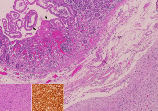 Pathology of the tumor was consistent with gastrointestinal stromal tumor. Small intestine with an intramural gastrointestinal stromal tumor, causing (arrows) ischemic erosion of the overlying mucosa (Hematoxylin and Eosin, original magnification X40). The tumor is composed of (inset a) fascicles of spindle cells with bland nuclei, presenting (inset b) immunoreactivity for CD117 (a - Hematoxylin and Eosin, original magnification X200, b – CD117, original magnification X200).