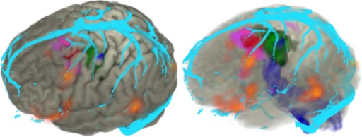 Volume rendering of cortex (grey) displayed in AMIRA with the following associated modalities: focal cortical dysplasia (red), fluorodeoxy glucose positron emission tomography (FDG-PET). hypometabolism (purple), hand motor fMRI (green), corticospinal tractography (blue), veins (cyan).
