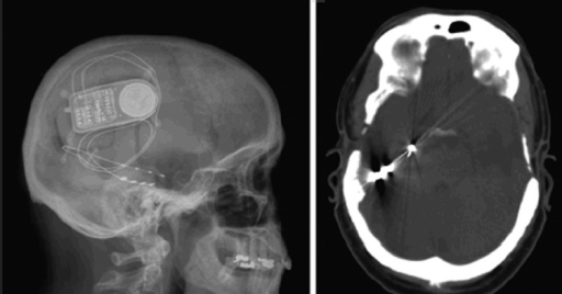 Closed-loop stimulation, with a depth electrode in the right hippocampus and a subdural grid over the inferior surface of the temporal lobe.35