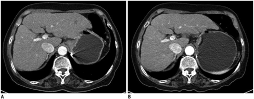 Transverse contrast-enhanced liver CT images of 67-year-old female (body mass index, 26.7 kg/m2) with liver cirrhosis.Previous CT (A) was scanned at 120 kV (136 eff. mAs) with volume CT dose index (CTDIvol) of 10.4 mGy and follow-up CT (B) was performed at 100 kV (132 eff. mAs) with CTDIvol of 5.2 mGy. Both readers selected (B) as preferred image.