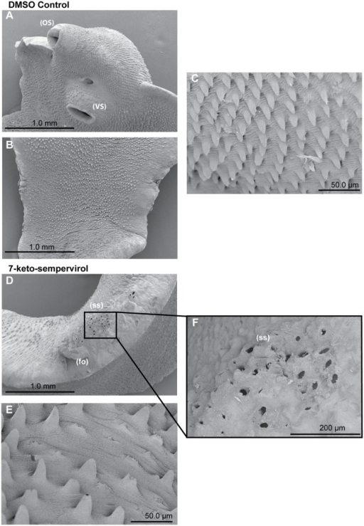 The diterpenoid 7-keto-sempervirol induces damage, shortening and loss of adult Fasciola hepatica tegumental spines.SEM images of adult F. hepatica 48 hr post-treatment with culture media containing DMSO (1% v/v) or 100 μM 7-keto-sempervirol. A) Normal fluke ventral surface architecture including oral sucker (OS) and ventral sucker (VS) is unaffected after cultivation with culture media containing 1% (v/v) DMSO. B) Fluke dorsal surface architecture is also unaffected after cultivation with culture media containing 1% (v/v) DMSO. C) Fluke ventral spine phenotype after cultivation with culture media containing 1% (v/v) DMSO. D) Dorsal spine sockets (ss) and folding (fo) after cultivation with 100 μM 7-keto-sempervirol. E) Ventral spines after cultivation with 100 μM 7-keto-sempervirol. F) Higher magnification of (ss) region outlined by black box in (D).