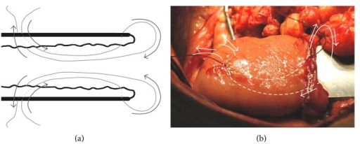 ((a), (b)) The technique of placing 1 of 3 sutures allowing the creation of the intestinal cuff.