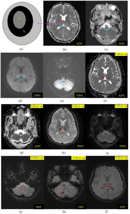 Diffusion MRI and susceptibility weighted imaging (SWI) findings of acute necrotizing encephalopathy (ANE). (a) was the schematic diagram of typical tricolor pattern corresponding to the thalamic lesions on (b) (a: center of thalamic lesions characterized by hemorrhage and necrosis; b: periphery of the central thalamic lesions characterized by cytotoxic edema; c: outside portions of the thalamic lesions suggesting vasogenic edema). (b) and (c), (d) and (e) were the apparent diffusion coefficient (ADC) and diffusion-weighted image (DWI), respectively, at onset which suggested the bilateral thalamus and brain stem lesions (blue arrow). (f) and (g), (h) and (i) were the ADC and DWI imaging of follow-up which revealed disappearance of the brain stem lesions and hemosiderin deposition on bilateral thalamus (red arrow). (j), (k), and (l) were the follow-up SWI images which showed hemosiderin deposition in the bilateral thalami and the cerebella (red arrow).