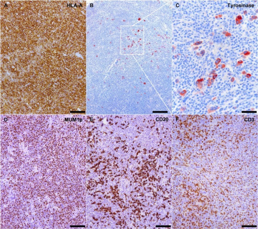 Metastatic melanoma xenografts in NOG mice affected by xenogeneic GVHD are effaced by plasma cell-rich lymphoid infiltrates.(A) Xenotransplanted metastatic melanoma is replaced by dense lymphoid infiltrates diffusely expressing human-specific MHC class I molecule HLA-A. HLA-A immunohistochemistry, scale bar = 100 μm. (B and C) Few residual groups of tyrosinase-positive melanoma cells are still detectable among the lymphoid infiltrates. Tyrosinase immunohistochemical staining, scale bar = 200 μm in B and 50 μm in C. Lymphoid infiltrates at the site of transplantation are primarily composed of MUM1p-positive plasma cells (D), CD20-positive mature B cells (E) and CD3-positive T cells. MUM1p, CD20 and CD3 immunohistochemistry, scale bar = 100 μm.
