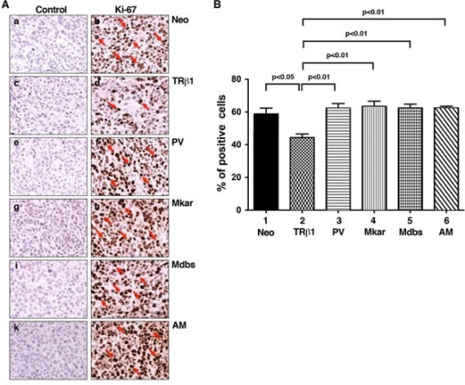 Comparison of cell proliferation by immunohistochemical analysis using the Ki-67 marker in tumor cells derived from Neo control cells, MDA-TRβ1, MDA-PV, MDA-Mkar, MDA-Mdbs, or MDA-AM cellsA. Immunohistochemical analysis of protein abundance of the nuclear proliferation marker Ki-67 in tumors. Sections of tumors derived from Neo control cells (panels a & b), MDA-TRβ1cells (panels c & d), MDA-PV cells (panels e & f), MDA-Mkar cells (panels g & h), MDA-Mdbs cells (panels i & j), and MDA-AM cells (panels k & l) were treated with control anti-IgG (panel a, c, e, g, i, & k) or with anti Ki-67 antibodies (panel b, d, f, h, j, & l) as described in Materials and Methods. The Ki-67 positively stained cells are indicated by arrows. B. The Ki-67-positive cells were counted from three different sections and expressed as percentage of Ki-67-positive cells versus total cells examined. The data are expressed as mean ± SE (n = 3). The p-values are shown.