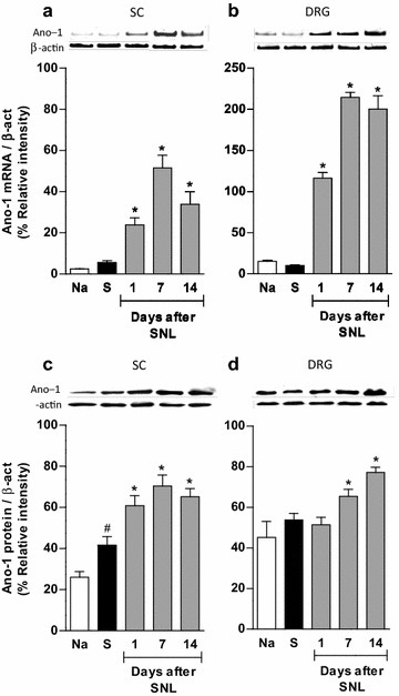 Spinal nerve injury increases anoctamin-1 expression in the spinal cord and DRG. RT-PCR (a, b) and western blot (c, d) analysis of anoctamin-1 (Ano-1) at the ipsilateral dorsal portion of the spinal cord (SC) and DRG obtained from naïve (Na), sham (S) and spinal nerve ligated (SNL) rats. Data were normalized against β-actin and are expressed as the mean ± SEM of three independent rats. Insets show a representative band of the PCR product (upper panels) and immunoblot (lower panels) obtained with the specific anoctamin-1 and β-actin primers or antibodies, respectively. *Significantly different from the S group (P < 0.05), #significantly different from the Na group (P < 0.05), as determined by one-way ANOVA, followed by the Student–Newman–Keuls test. Note that spinal nerve injury enhanced Ano-1 mRNA and protein expression in spinal cord and DRG whereas that surgery increased Ano-1 expression in sham (S) animals in spinal cord but not DRG.