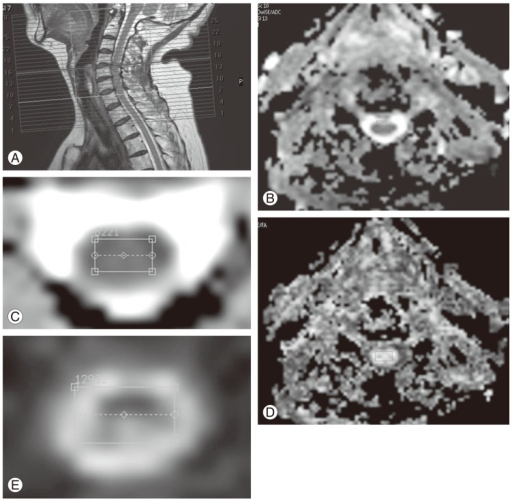 Magnetic resonance imaging techniques. (A) Anatomical scan (T2-weighted fast spin echo image). (B) Apparent diffusion coefficient (ADC map; axial view). (C) ADC (region of interest). (D) Fractional anisotropy (FA map; axial view). (E) Fractional anisotropy (region of interest).