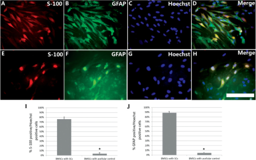 Induction of BMSC differentiation by SC diffusible factors on the 3rd day of co-culture. The glial differentiation of BMSCs was assessed by (A and E) S-100 (red) and (B and F) GFAP (green) immunofluorescence and (C and G) Hoechst nuclear staining (blue). (A–D) Glial differentiation was more evident for BMSCs co-cultured with SCs than for (E–H) BMSCs co-cultured without SCs (scale bar, 50 µm). Quantification of the images provided the percentages of (I) S-100-positive or (J) GFAP-positive cells relative to the number of Hoechst-positive nuclei. Results were averaged for three wells and repeated four times. Each of the four repeats was from a different culture, with each culture in turn being derived from a different animal. Quantitative study showed that the percentage of S-100-positive (76.3±5.47%, n=6) as well as GFAP-positive (88.7±3.35%, n=6) cells in BMSCs co-cultured with SCs was significantly higher than that in BMSCs cultured without SCs (S100, 3.51±2.44%, n=6; GFAP, 4.43±0.99%, n=6) (*P<0.05). BMSC, bone marrow stromal cell; SC, Schwann cell; GFAP, glial fibrillary acidic protein.