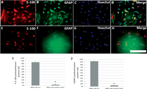 Induction of BMSC differentiation by SC diffusible factors on the 5th day after co-culture. The glial differentiation of BMSCs was assessed by (A and E) S-100 (red) and (B and F) GFAP (green) immunofluorescence and (C and G) Hoechst nuclear staining (blue). (A–D) Glial differentiation was more evident for BMSCs co-cultured with SCs than for (E–H) BMSCs co-cultured with control (scale bar, 50 µm). Quantification of the images provided the percentages of (I) S-100-positive or (J) GFAP-positive cells relative to the number of Hoechst-positive nuclei. Results were averaged for three wells and repeated four times. Each of the four repeats was from a different culture, with each culture in turn being derived from a different animal. Quantitative study showed that the percentage of S-100-positive (85.6±1.69%, n=6), as well as GFAP-positive cells (93.1±2.27%, n=6) in BMSCs co-cultured with SCs was significantly higher than that in BMSCs cultured without SCs (S100, 3.01±4.87%, n=6; GFAP, 4.12±0.23%, n=6) (*P<0.05). BMSC, bone marrow stromal cell; SC, Schwann cell; GFAP, glial fibrillary acidic protein.