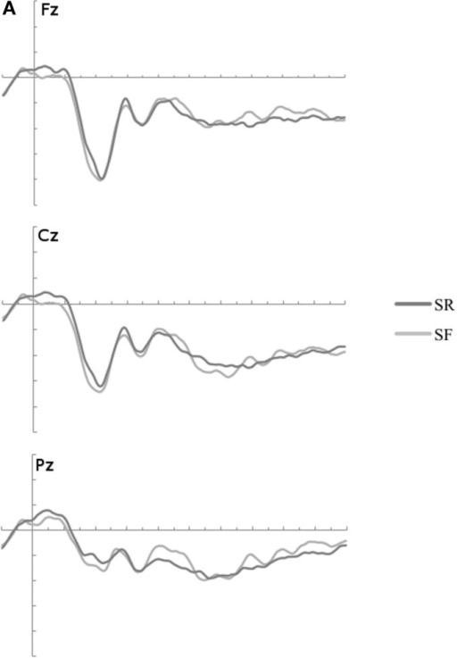 (A) The ERP waveforms to restudied items which were later remember and forgotten (SR/SF) were not significantly different at any time windows of interest. (B) ERP waveforms to all restudied items (RS) and tested items categories by Memory Condition (RR, RF, FF). ERPs are plotted from 100 ms before stimulus onset to 1000 ms thereafter at frontal, central and posterior midline sites: Fz, Cz, and Pz. Three time windows of interest are marked in gray. The waveforms were low-passed filtered at 12 Hz for illustration. RR, remembered; RF, later forgotten; FF, immediately forgotten.