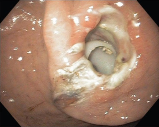 Percutaneous endoscopic gastrostomy bumper buried within gastric wall