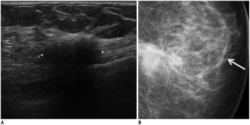 Foreign body reaction in 61-year-old woman with history of breast augmentation and removal (material: unknown).A. Transverse ultrasonography image shows irregular spiculated hypoechoic mass with posterior shadowing. B. Left craniocaudal mammogram shows irregular obscured hyperdense mass with overlying skin thickening (arrow) in left breast lower inner quadrant.