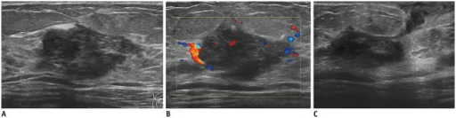 Right breast abscess in 36-year-old woman.A. Transverse ultrasonography (US) image shows irregular hypoechoic mass with inner mixed echogenicity in her right breast. B. Increased vascularity is seen on color Doppler US. Acute and chronic inflammation were confirmed by US-guided core needle biopsy. C. After 13 months, transverse US image reveals abscess with fistula formation.