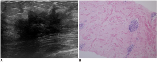 Diabetic mastopathy in 44-year-old woman with long-standing type 2 diabetes mellitus.A. Initial transverse ultrasonography image shows irregular spiculated hypoechoic masses with marked posterior shadowing in right breast. B. Photomicrography (hematoxylin and eosin stain, × 100) demonstrates band-like keloid fibrosis with periductal inflammation. After 2 years, lesions remain unchanged on follow-up image (not shown).