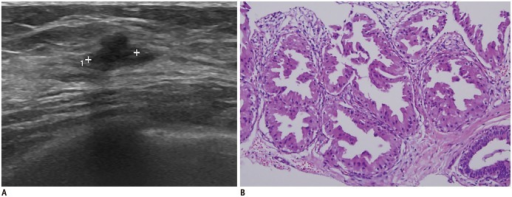 40-year-old woman with apocrine metaplasia.A. Transverse ultrasonography image shows irregular hypoechoic mass with angular margin in her right breast. B. Apocrine metaplasia was reveled from core biopsy (hematoxylin and eosin stain, × 400).