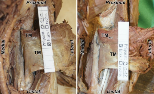 Additional head – teres major accessorius muscle. Two left specimens, presenting the teres major accessorius muscle (TMacc). The teres major muscle (TM) is still attached to the humeral bone but cut and turned laterally. The additional head is visible on the posterior surface within the proximal third. The separate insertion and the short tendon in comparison to the TM's main tendon can especially be seen in the right picture.