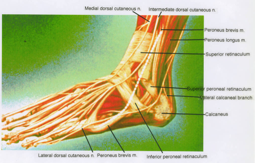 medial dorsal cutaneous nerve; intermediate dorsal cutaneous nerve; fibularis (peroneus) brevis muscle; fibularis (peroneus) longus muscle; superior retinaculum; superior fibular (peroneal) retinaculum; lateral calcaneal branch of sural nerve; calcaneus; lateral dorsal cutaneous nerve; fibularis (peroneus) brevis muscle; inferior fibular (peroneal) retinaculum