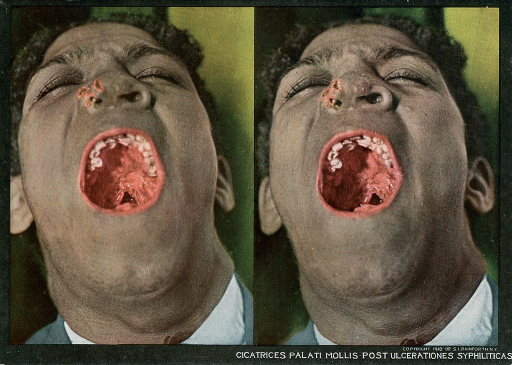 <p>Stereographies of a man with his mouth wide open to show a circumscribed or diffused gummatous infiltration of the soft palate, that occurs in the tertiary stage of syphilis.  Stereoscopic skin clinic.</p>