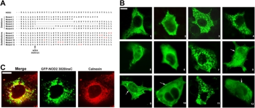 NOD2 membrane association is COOH-terminal dependent. (A) Sequences of Flag-NOD2 COOH-terminal deletion and substitution mutants. (B) Caco-2 cells were transfected with Flag-NOD2 mutant constructs. Mutants 1–12 were detected by confocal microscopy using monoclonal anti-Flag antibody followed by fluorescein-conjugated anti–mouse IgG. Membrane association is still observed for some NOD2 mutants (arrows). (C) COS7 cells were transfected with GFP-NOD2 3020insC and were stained with calnexin (ER marker). Some of the observed vesicles colocalized with calnexin (arrows). Bars, 20 μm.