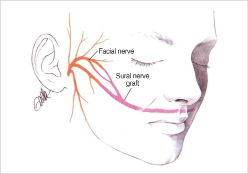 Coaptation of the sural nerve graft to the donor facial | Open-i
