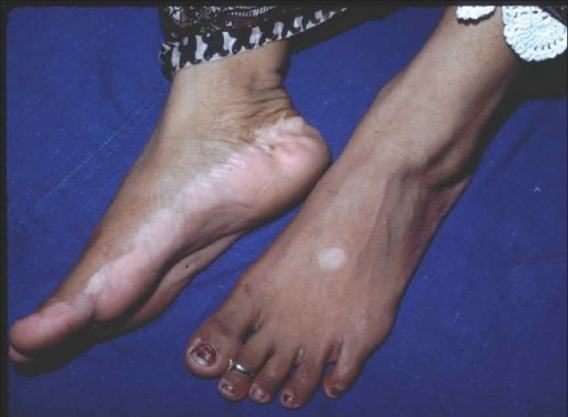 Depigmentation of the feet, typical early manifestation of vitiligo