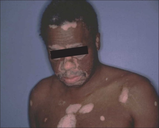 Depigmentation around the eyes (partially blocked), the nares and mouth, all classical and early manifestations of bilateral vitiligo