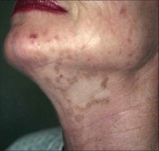Unilateral depigmentation (segmental vitiligo) affecting the neck of a woman. Note the very similar distribution of depigmentation in the two men pictured in Figures 7 and 8