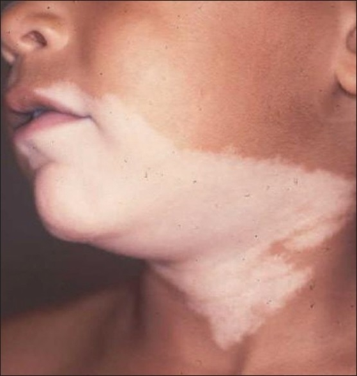 Nevus depigmentosus on the neck of a boy. The pigmentary abnormality was present at birth in the patient