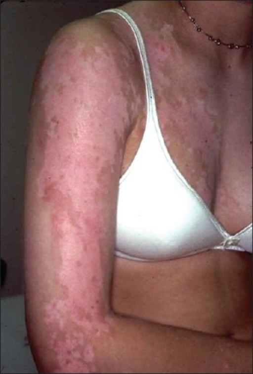 Unilateral depigmentation (segmental vitiligo) on the anterior chest and upper part of the right arm in a young woman. The distribution of pigment loss is very similar in this patient and the one given in Figure 12