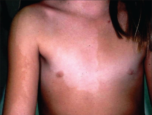 A nevus depigmentosus in a young girl with a distribution of pigment loss similar to the unilateral vitiligo seen in Figures 11 and 12