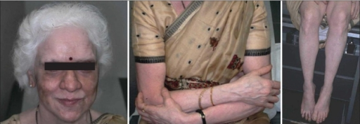 An Indian woman with veloce vitiligo. She lost almost all of her pigmentation on the skin and hair over a period of some months