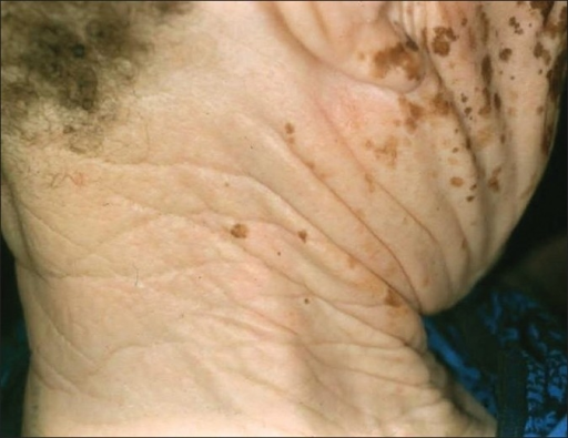 The neck of an African woman who had vitiligo for over 20 years. She was a farmer and worked in the sun daily. Note the elastosis of the neck, but the normal overlying white epidermis