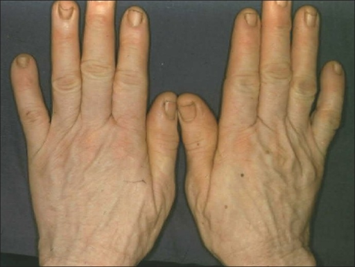 The hands of the African woman shown in Figure 19, who had vitiligo for over 20 years. She was a farmer and worked in the sun daily
