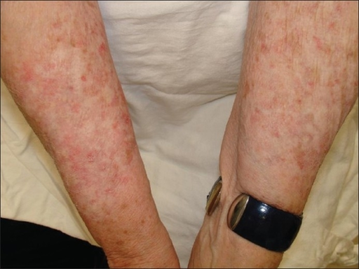 The arms of a woman with piebaldism (c-kit). She has marked sun damage and many actinic keratoses, mostly in the depigmented patches on her arms