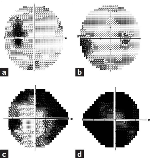 Visual field defects in idiopathic intracranial hypertension. (a) Enlarged blind spot. (b) Nasal step. (c) Biarcuate scotoma. (d) Severe visual field constriction