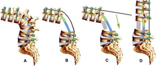 Spinal fusion surgery study