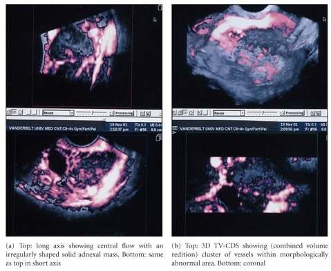 3D TV-CDS of papillary cystadenocarcinoma showing multiplanar reconstruction (MPR) images.